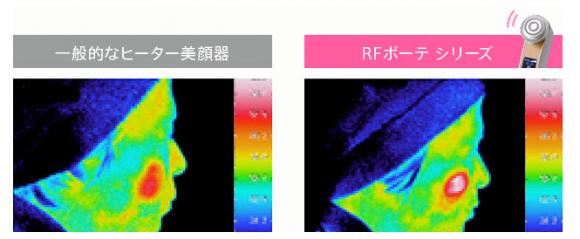 ヤーマン rfボーテシリーズ 美顔器 効果